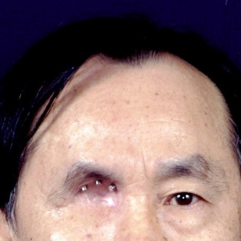 This patient lost his eye to cancer. Implants were placed at the superior area of his orbital bone to be attached to the eventual prosthesis.
