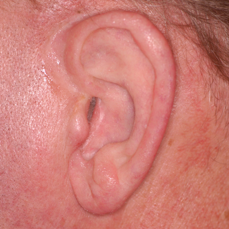The final result of the auricular (ear) prosthesis, fully attached magnetically to the head, incorporating the small part of the patient's ear anatomy. Notice the intrinsic coloration making a life-like, barely detectible prosthesis made by master anaplastologist, Susan Habakuk.
