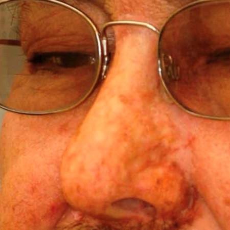 Nasal Prosthesis